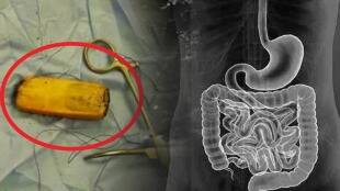 patient swallowed mobile phone
